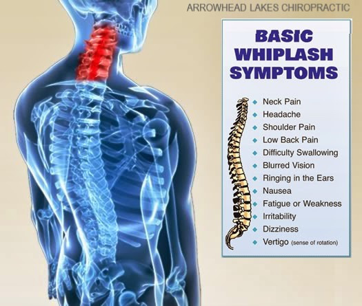 Image of whiplash symptoms